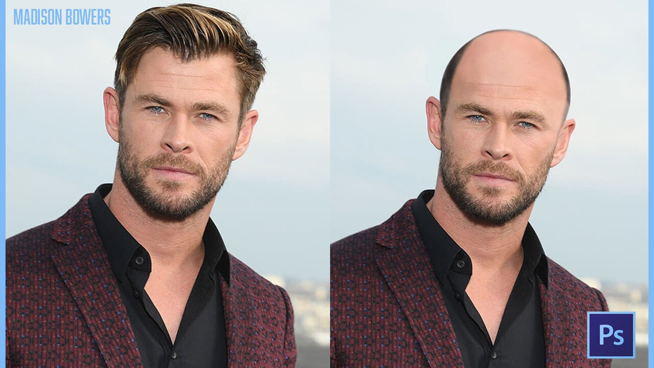 Hemsworth balding